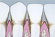 Cross Section Periodontitis